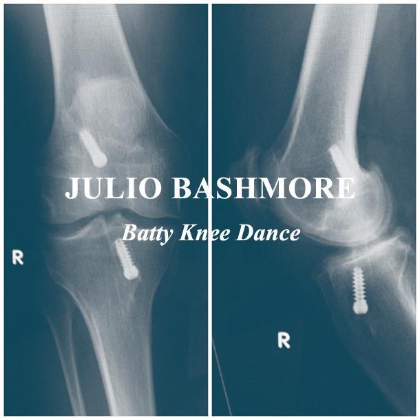 Julio Bashmore – Batty Knee Dance