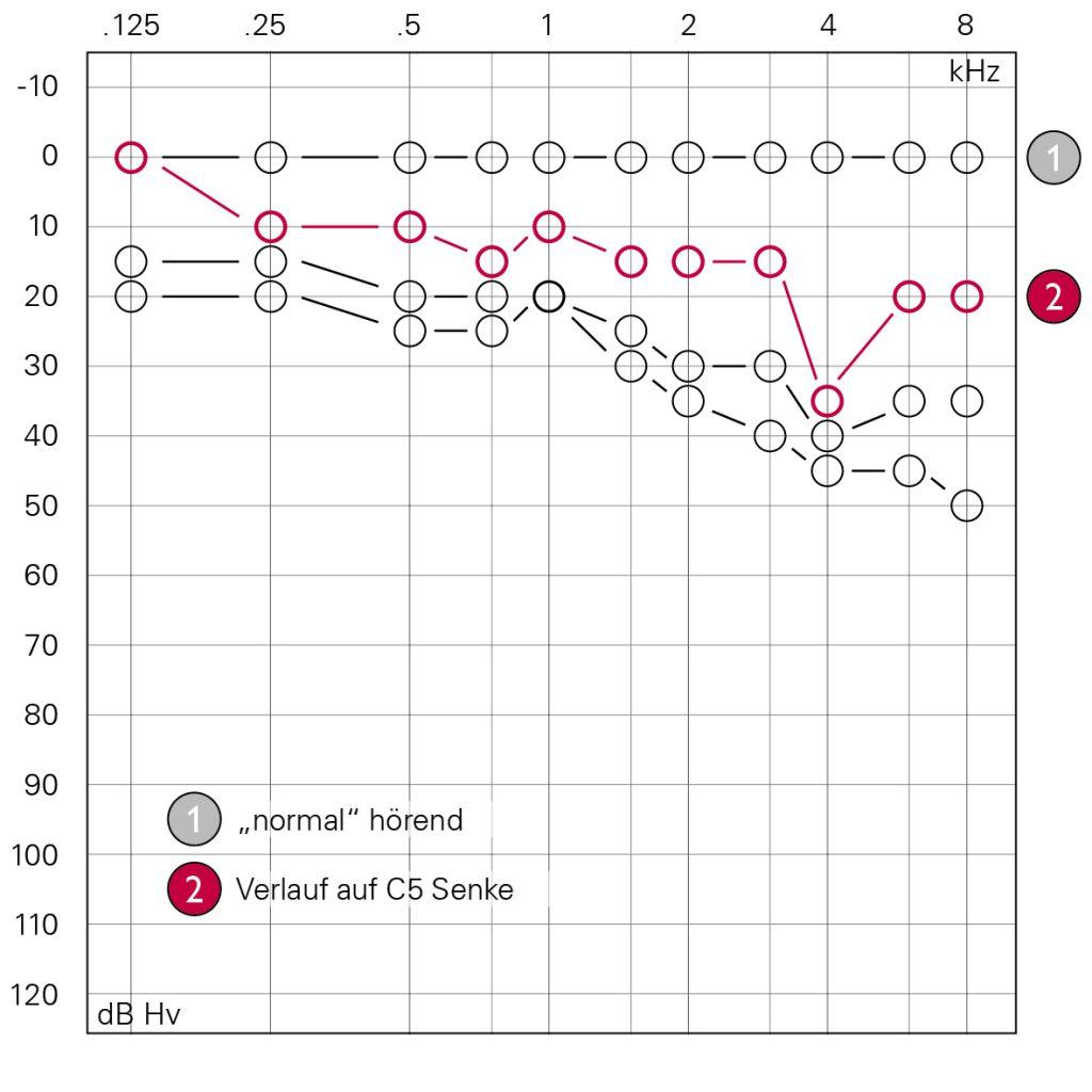 Verlauf C5 Senke Grafik Bernafon
